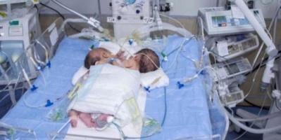 وفاة توأمين سياميين يمنيين في #صنـعاء