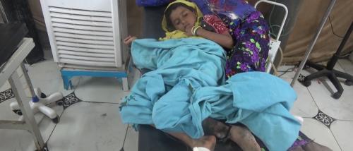 إصابة طفلة بإنفجار لغم من مخلفات مليشيات الحوثي في الحديدة