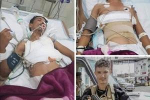 الرئيس الزُبيدي يوجه بنقل الجريح سعيد باحمدان لتلقي العلاج في الخارج