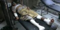 استشهاد مدني وإصابة 5 آخرين في هجوم للحوثيين بطائرة مسيرة بالدريهمي الحديدة